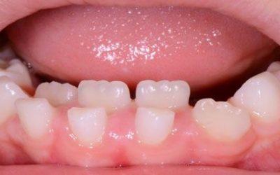 Il dente da latte ancora non è caduto eppure dietro sta uscendo il definitivo, potrebbe essere un problema?